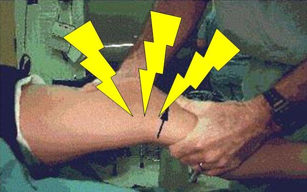 Knee - Pain Lightning