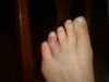 Wife_broken_toe